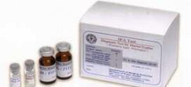 ชุดตรวจโรคติดเชื้อ Murine Typhus